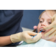 Shows the application of the fluoride gel to the child