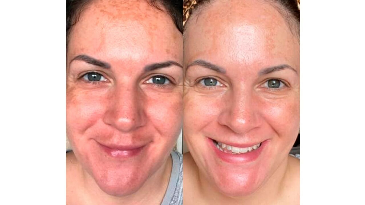 Before and after sun exposure